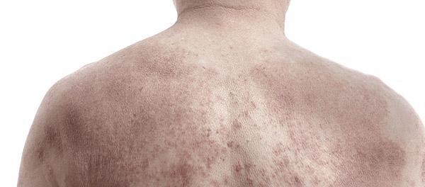 Seborrheic dermatitis - photo