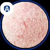 atopic dermatitis (AD) - graphics
