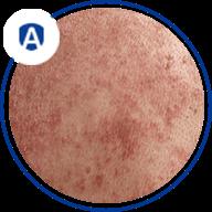 Seborrheic dermatitis - graphics